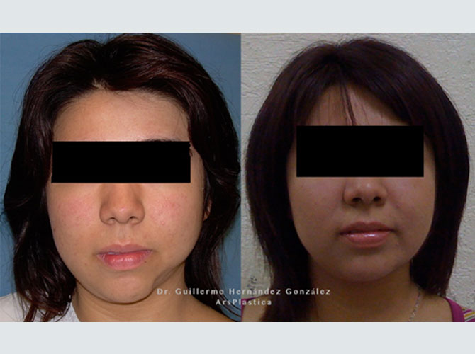 Facial reconstructive deformities plastic surgeon